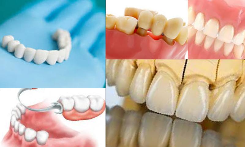 Protetik Diş Tedavisi Öncesi ve Sonrası