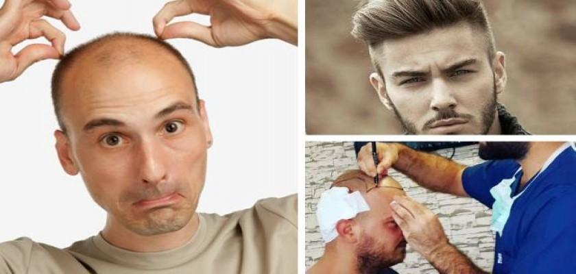 Saç Ekiminde Dikkat Edilmesi Gerekenler